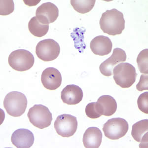 Babesia sp. in a thin blood smear stained with Giemsa. Note the clumped extracellular forms indicative of Babesia.