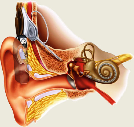 cochlear implant picture
