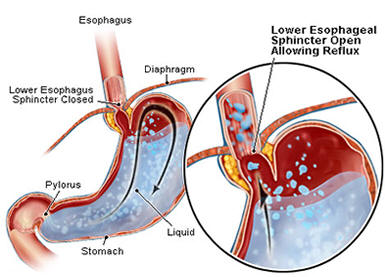GERD diet picture of Lower esophageal sphincter