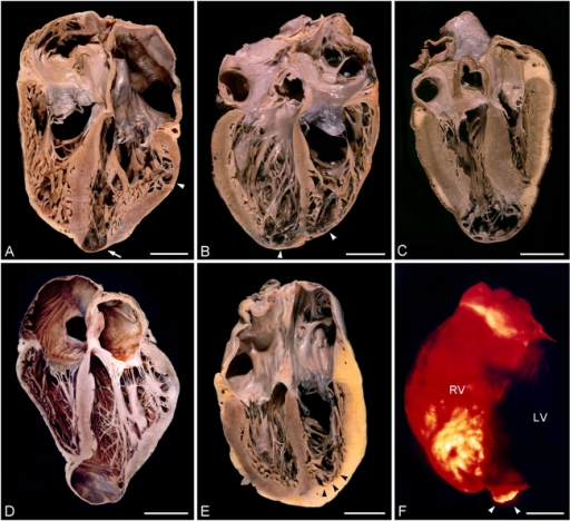Gross pathology of chronic Chagas cardiomyopathy (four-chamber frontal view)