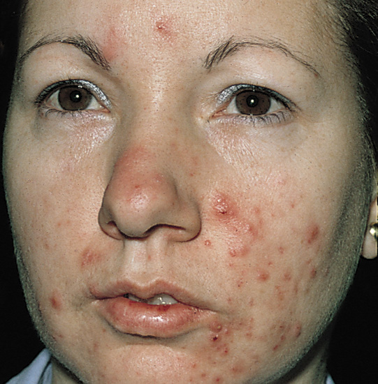 different types of acne - severe acne picture- showing inflamed papules and papulopustules on face