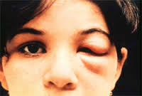 Romaña's sign in acute Chagas disease