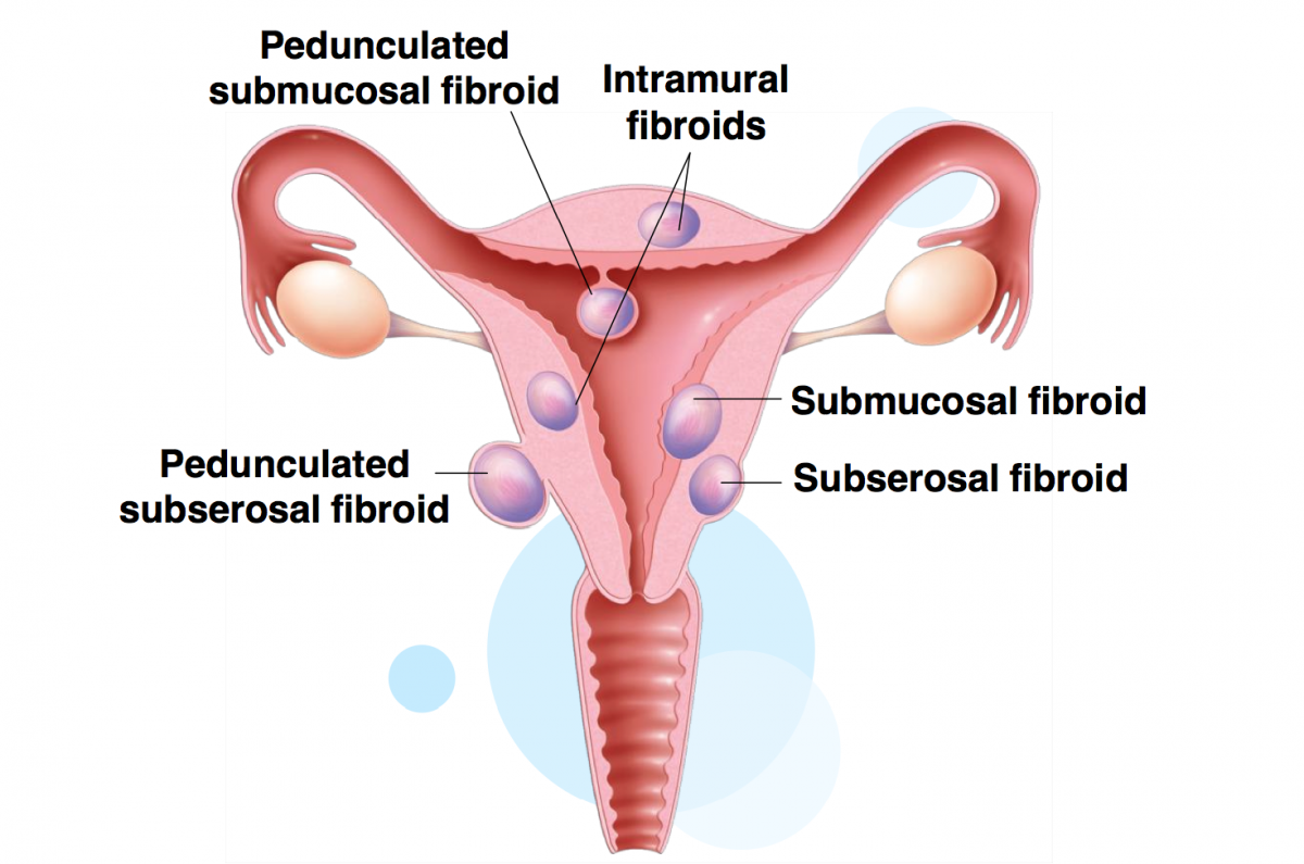 picture of types of uterine fibroids and their location in the uterus