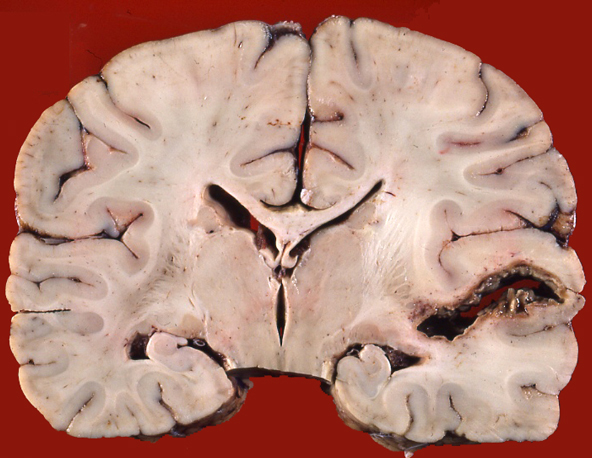 temporal lobe abscess