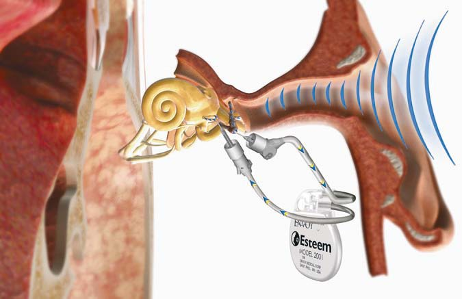"tinnitus treatment picture - Envoy piezoelectric device ""esteem"""