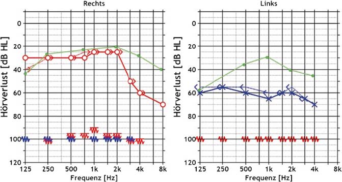 tinnitus cure picture - audiogram of patient after second implant operation