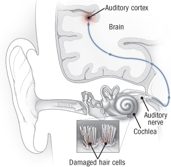 tinnitus treatment - picture of auditory pathways from ear to auditory cortex