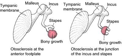 otosclerosis picture of ossicles
