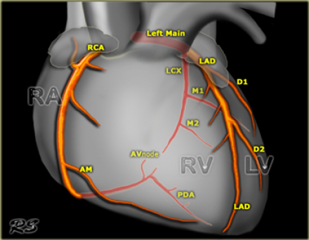 overview of the coronary arteries in the anterior projection