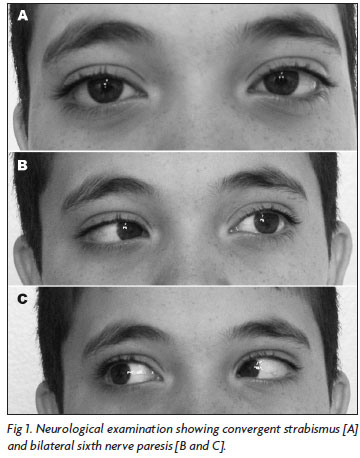 convergent strabismus, and bilateral sixth nerve paresis