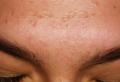 types of acne - picture of acne mechanica on forehead