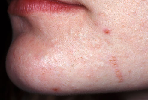 different types of acne - mild acne picture- on chin