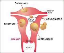 picture of types of fibroids in uterus