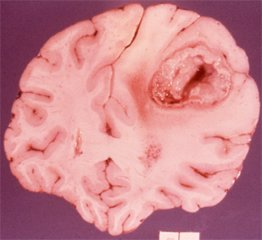 cerebral or intracranial abscess
