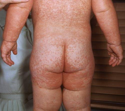 measles pic - rash on back and legs