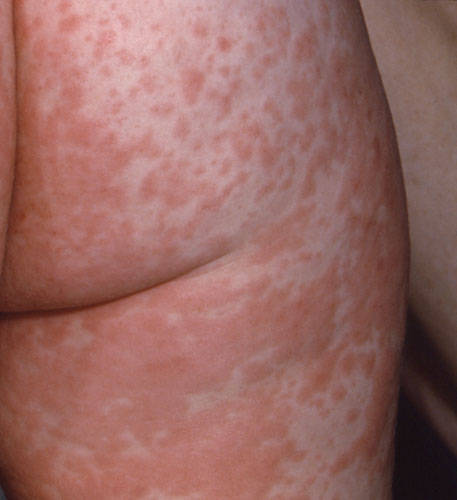 measles pictures - rash on upper leg