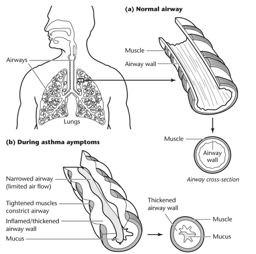 normal lung airway and airway in asthma