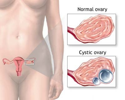 ovarian cyst pain image