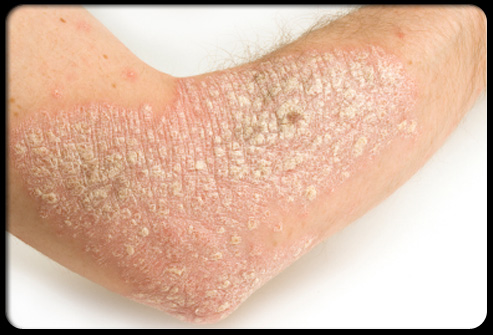 plaque psoriasis on arm