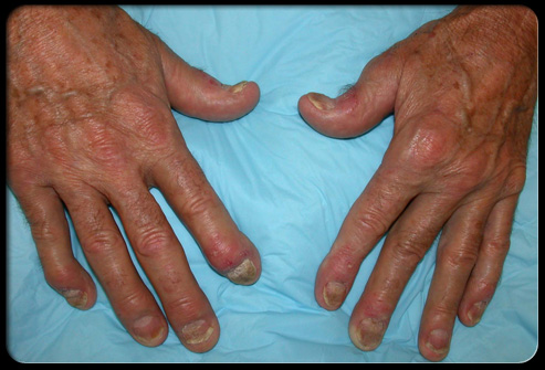 psoriatic arthropathy
