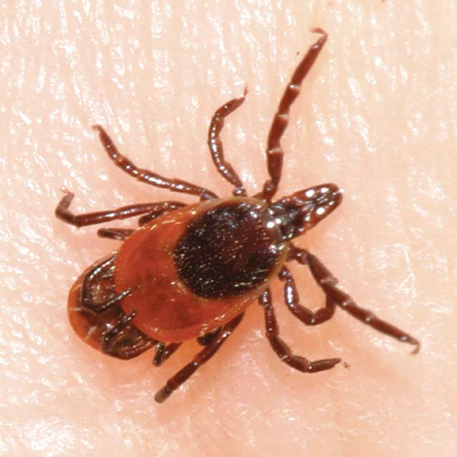 Ticks can carry not only Lyme disease but also two other threats, including babesiosis